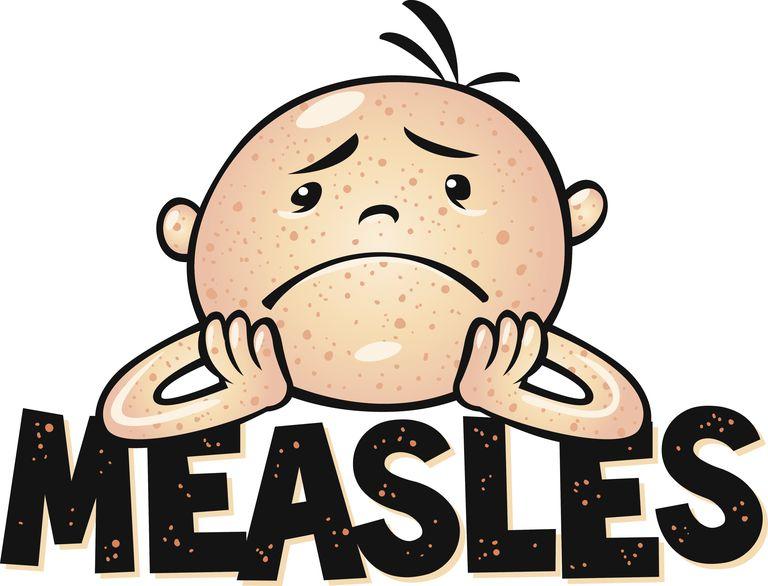 Measles Outbreak